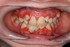 Preventing gum disease 2